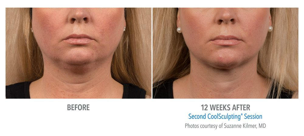 Before & After Coolsculpting Pictures