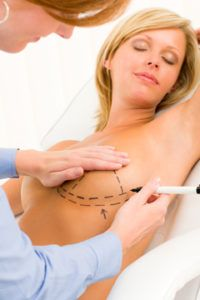 Breast Augmentation - Los Angeles | Beverly Hills