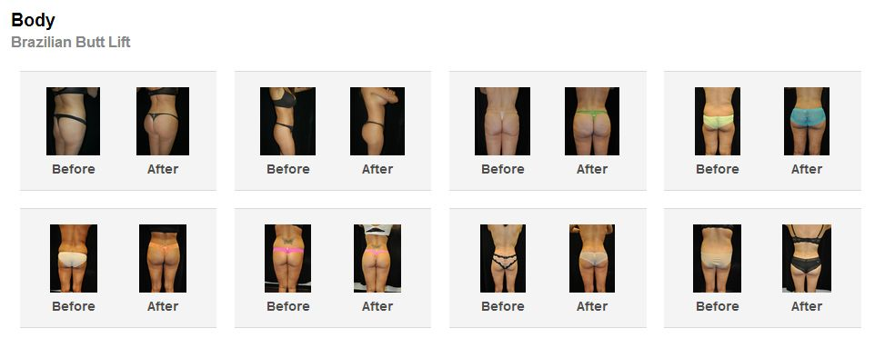 brazillian butt lift before and after photos