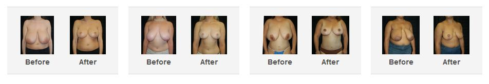 breast reduction before and after photos beverly hills los angeles