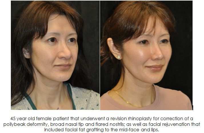 facial rejuvenation fat grafting before and after photos