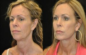 facial rejuvenation (facelift & facial fat grafting) before & after pictures 2