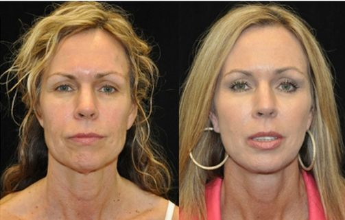 facial rejuvenation (facelift & facial fat grafting) before & after pictures 3