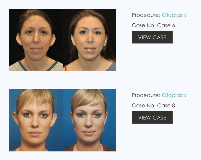 Otoplasty | Ear Surgery | Beverly Hills | Los Angeles CA