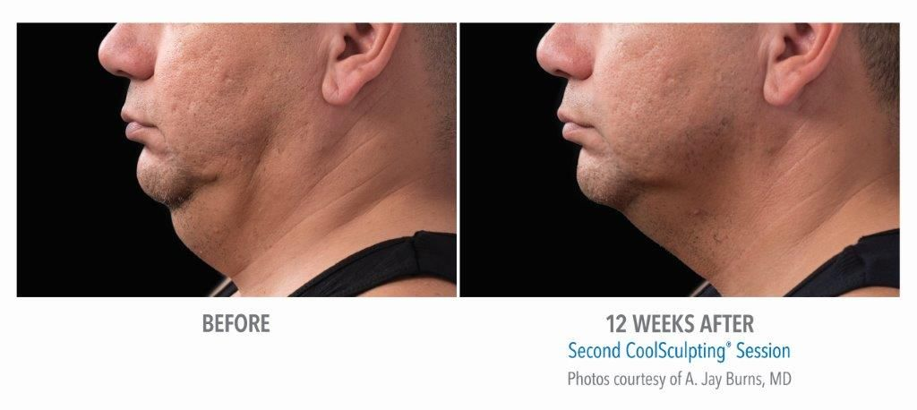 Neck Fat Reduction with CoolSculpting - Special Offer $200 Off 1st Treatment