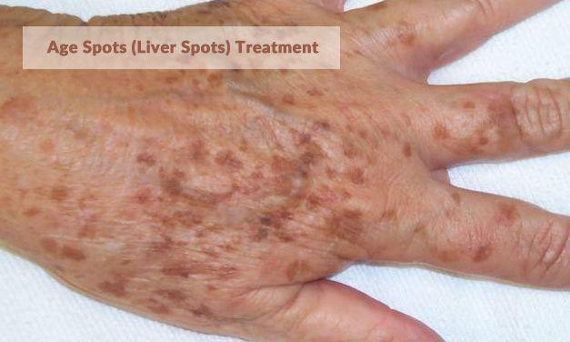 Age Spots (Liver Spots) Treatment