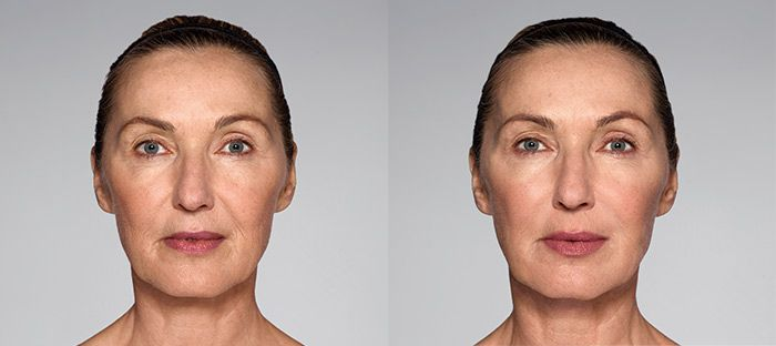 Restylane-Refyne-before-after-1