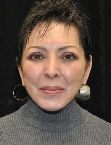 Another after picture for Case 4 Blepharoplasty (Upper Eyelid Lift) Before and After Photos