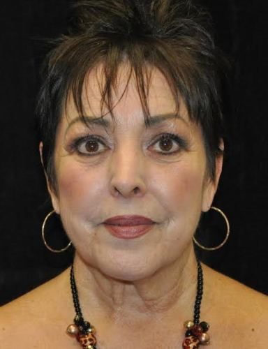 Another before picture for Case 4 Blepharoplasty (Upper Eyelid Lift) Before and After Photos