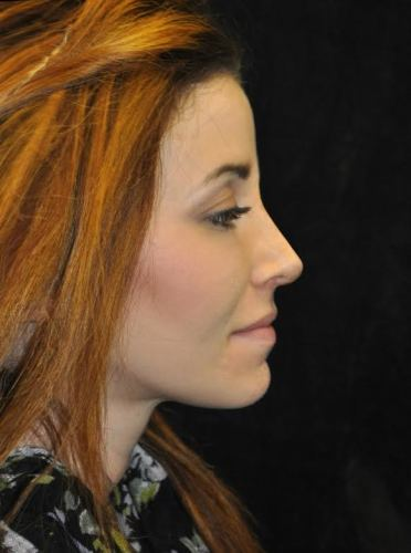 Another after picture for Case 111 Rhinoplasty Before and After Photos
