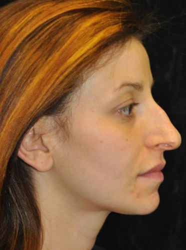Another before picture for Case 111 Rhinoplasty Before and After Photos