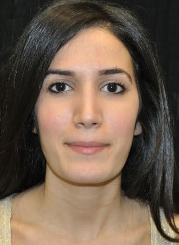 Another after picture for Case 113 Rhinoplasty Before and After Photos