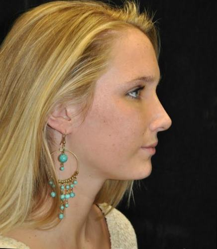 Another after picture for Case 114 Rhinoplasty Before and After Photos