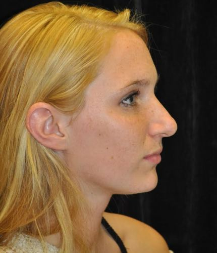 Another before picture for Case 114 Rhinoplasty Before and After Photos