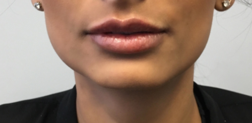 Another after picture for 1 Dermal Fillers Before and After Photos