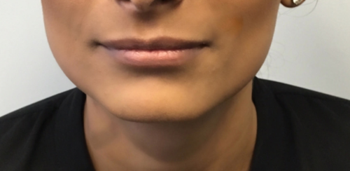Another before picture for 1 Dermal Fillers Before and After Photos