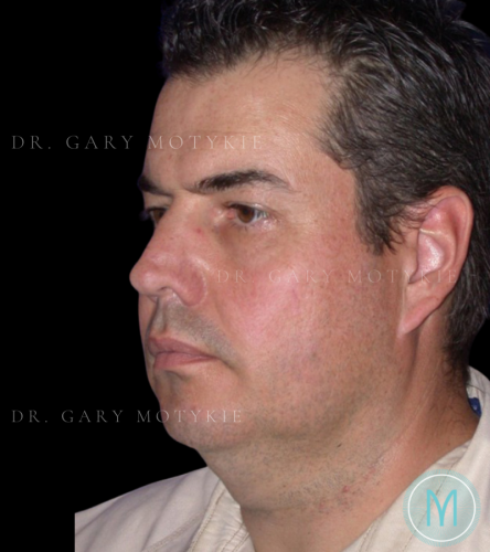 Another before picture for Case 1 Neck Lift Before and After Photos