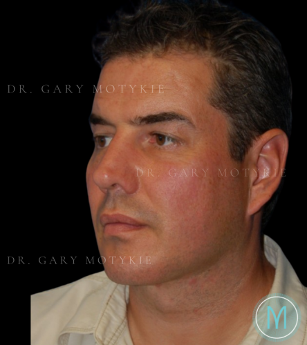 Another after picture for Case 1 Neck Lift Before and After Photos
