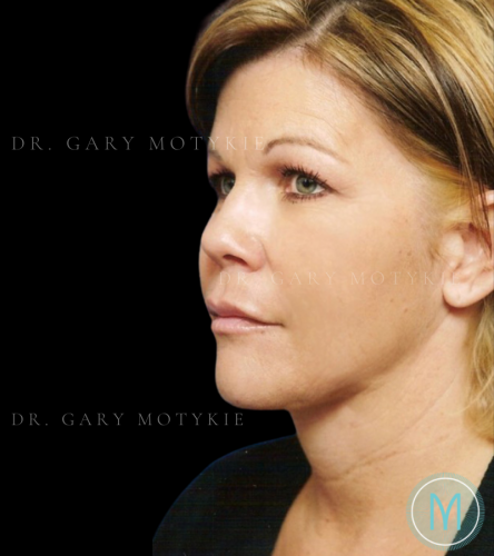 Another after picture for Case 3 Neck Lift Before and After Photos