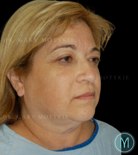 Another before picture for Case 4 Neck Lift Before and After Photos