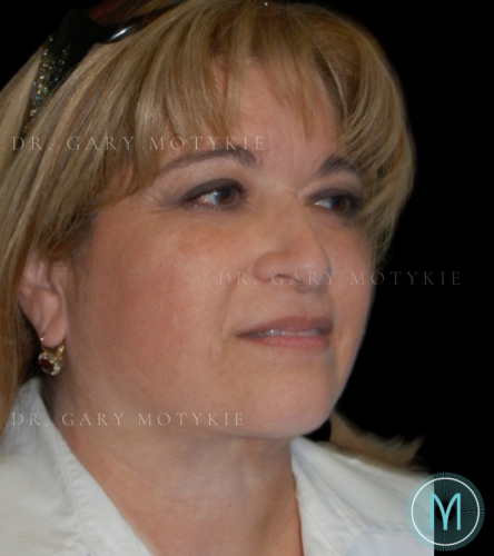 Another after picture for Case 4 Neck Lift Before and After Photos