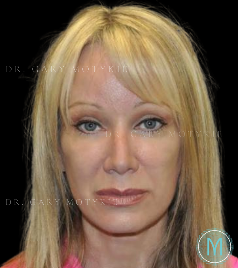 Another after picture for Case 2 Brow Lift Before and After Photos