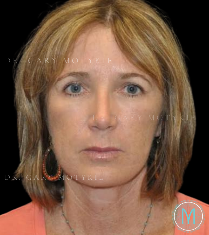 Another after picture for Case 3 Brow Lift Before and After Photos