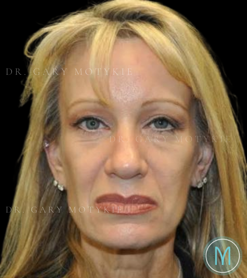 Another before picture for Case 2 Brow Lift Before and After Photos