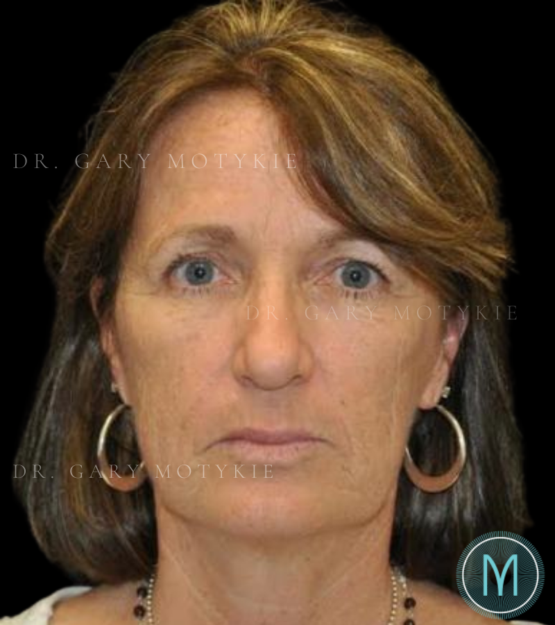 Another before picture for Case 3 Brow Lift Before and After Photos