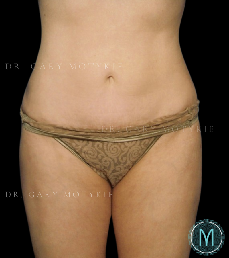 Another after picture for Case 2 Tummy Tuck Before and After Photos