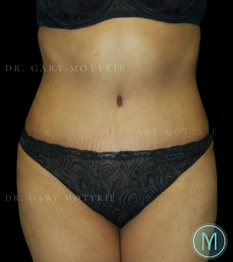 Another after picture for Case 3 Tummy Tuck Before and After Photos