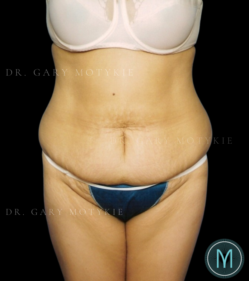 Another before picture for Case 1 Tummy Tuck Before and After Photos
