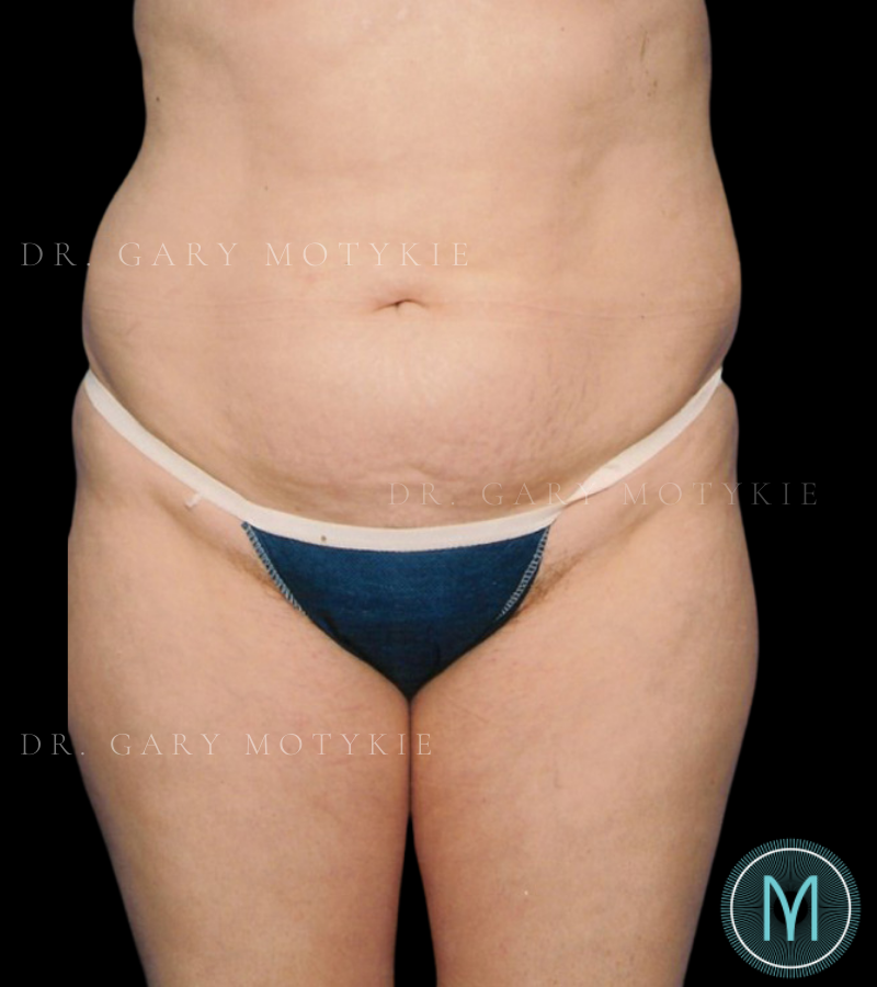 Another before picture for Case 2 Tummy Tuck Before and After Photos