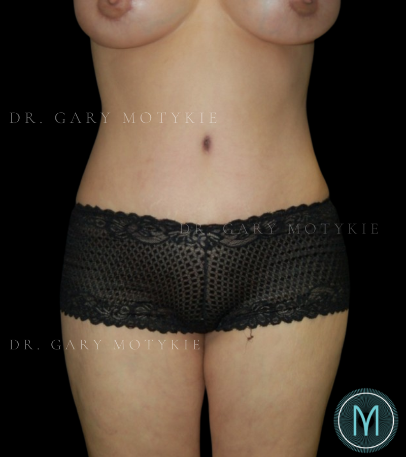 Another after picture for Case 5 Tummy Tuck Before and After Photos