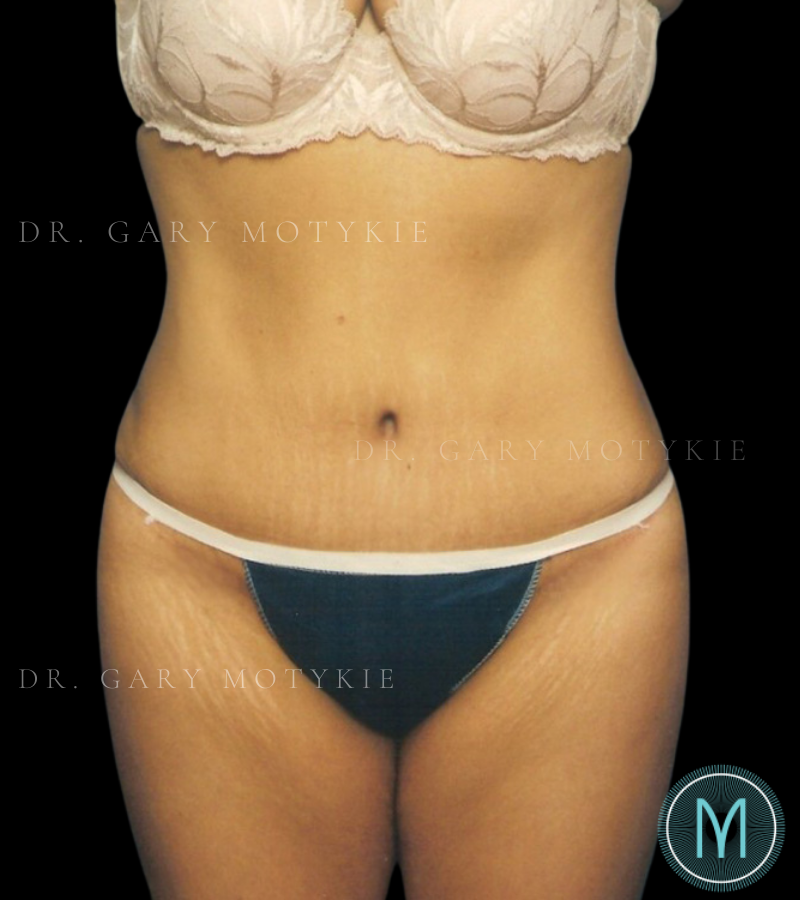 Another after picture for Case 1 Tummy Tuck Before and After Photos
