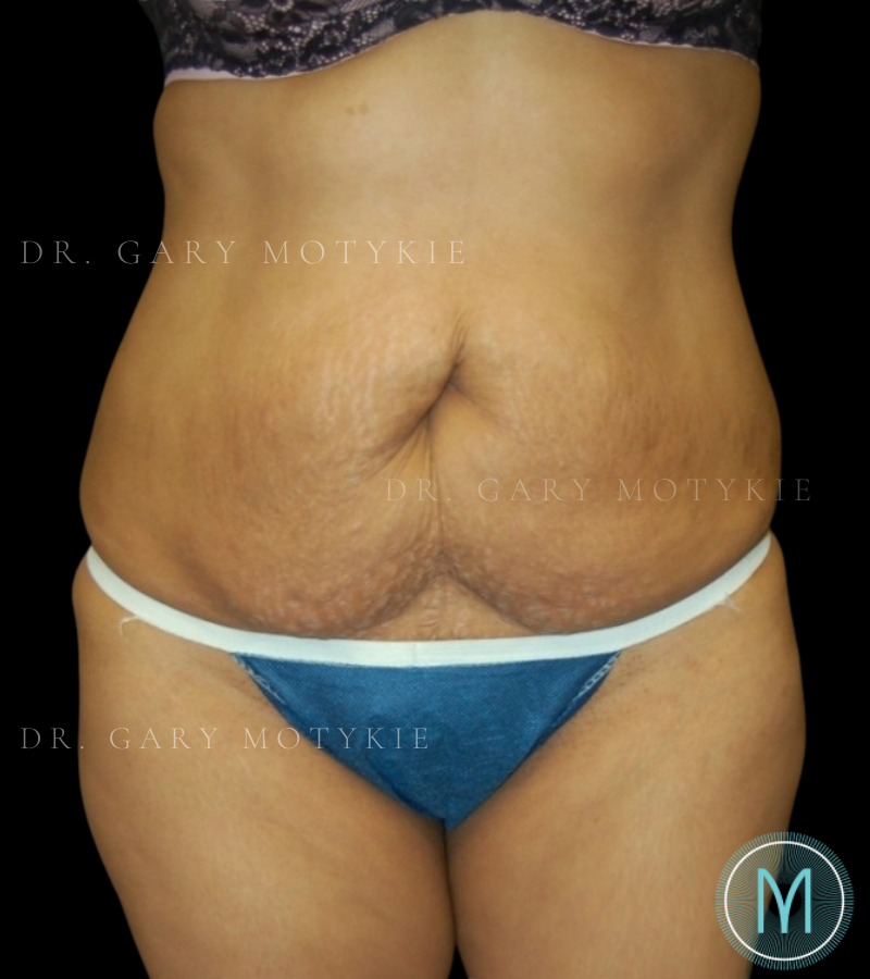 Another before picture for Case 3 Tummy Tuck Before and After Photos