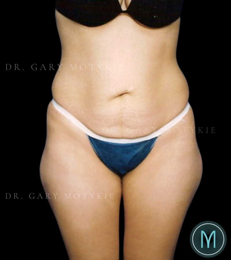Another before picture for Case 4 Tummy Tuck Before and After Photos