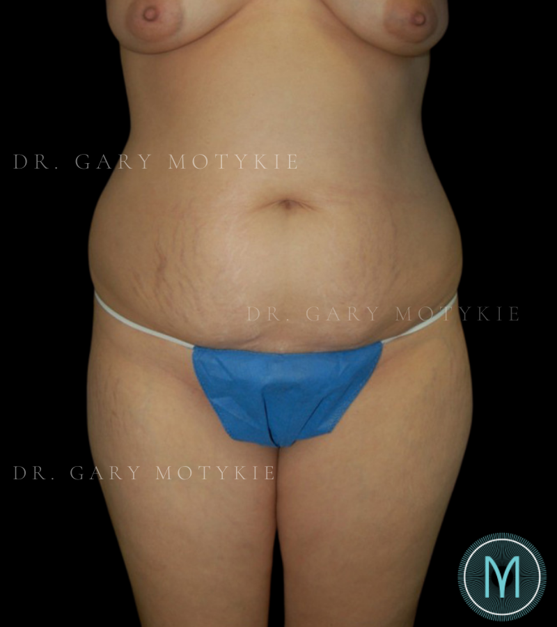 Another before picture for Case 5 Tummy Tuck Before and After Photos