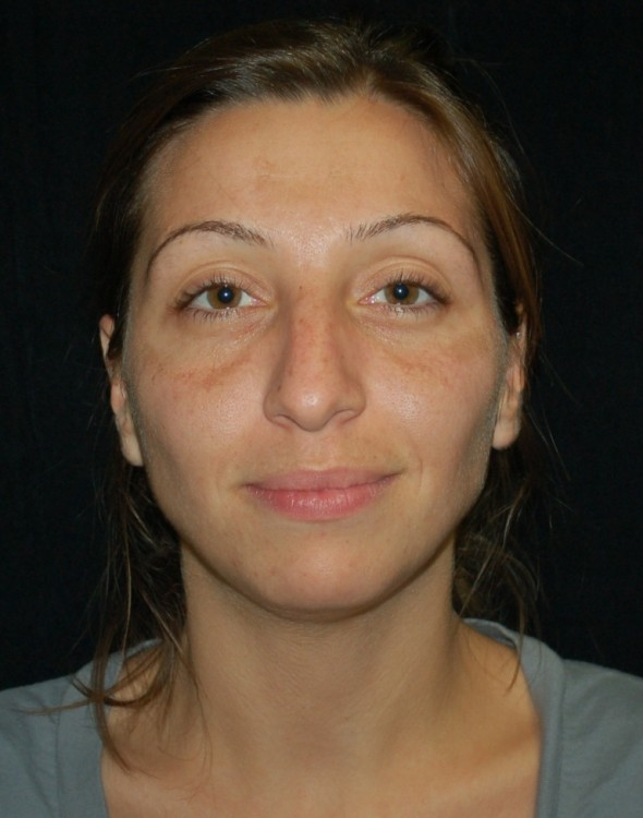 Another before picture for Case 2 Facial Fat Grafting Before and After Photos