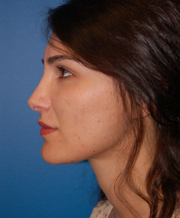 Another after picture for Case 4 Facial Fat Grafting Before and After Photos