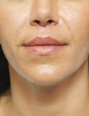 Another after picture for Case 2 Lip Augmentation Before and After Photos
