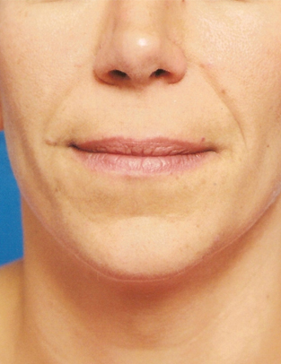 Another before picture for Case 2 Lip Augmentation Before and After Photos