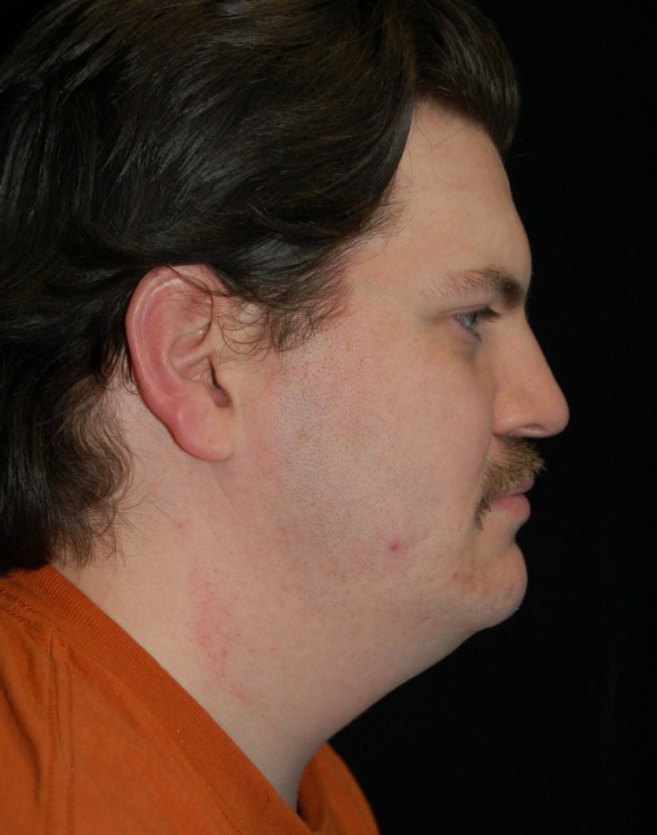 Another before picture for Case 5 Neck Lift Before and After Photos