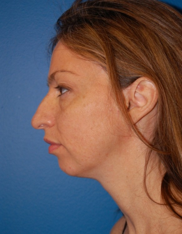 Another before picture for Case 1 Profile Balancing (Chin & Rhinoplasty) Before and After Photos