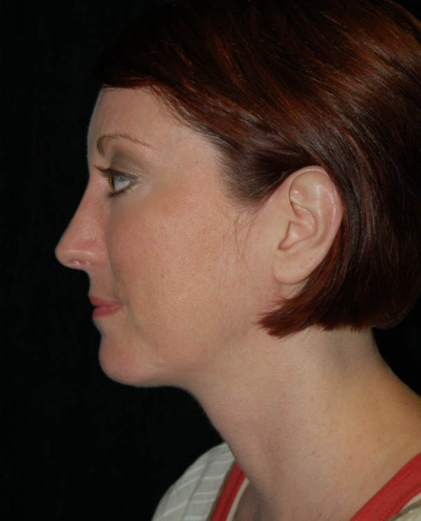 Another after picture for Case 3 Profile Balancing (Chin & Rhinoplasty) Before and After Photos