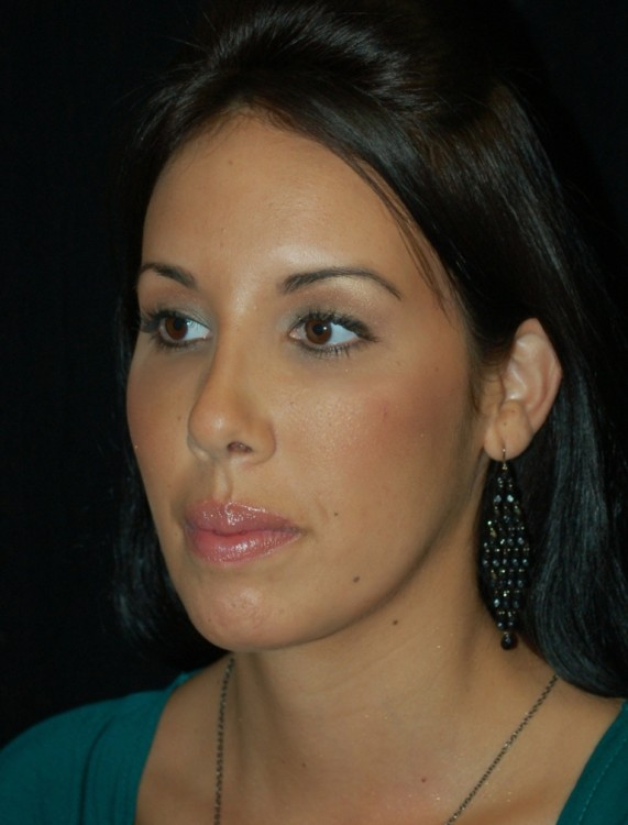Another after picture for Case 4 Profile Balancing (Chin & Rhinoplasty) Before and After Photos