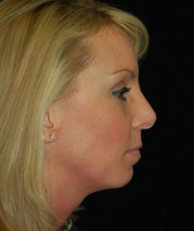 Another before picture for Case 6 Profile Balancing (Chin & Rhinoplasty) Before and After Photos