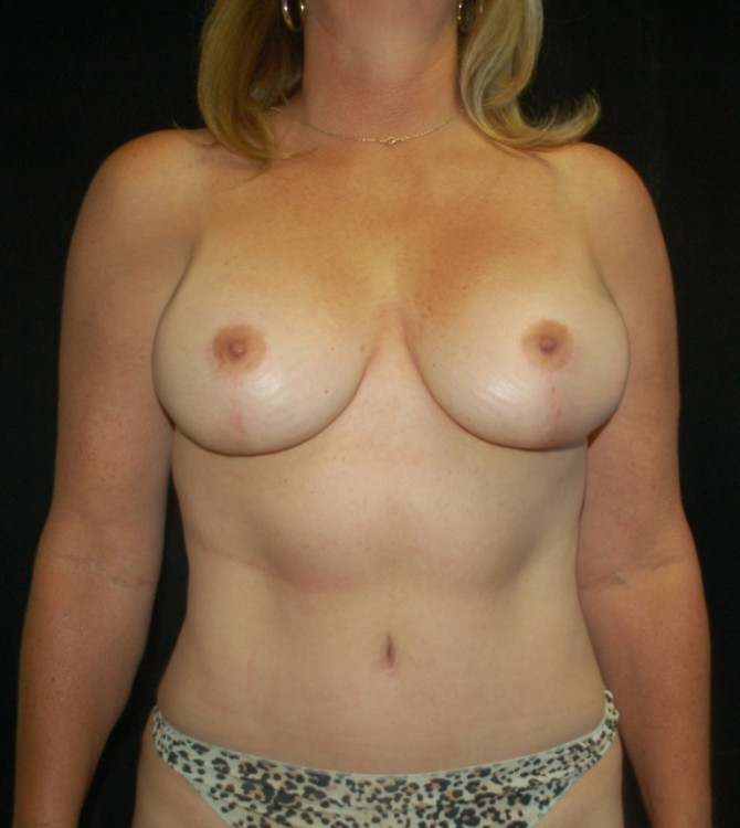 Another after picture for Case 5 Mommy Makeover Before and After Photos