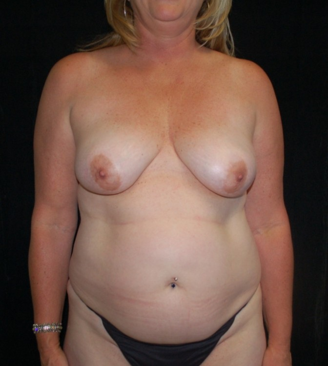 Another before picture for Case 5 Mommy Makeover Before and After Photos