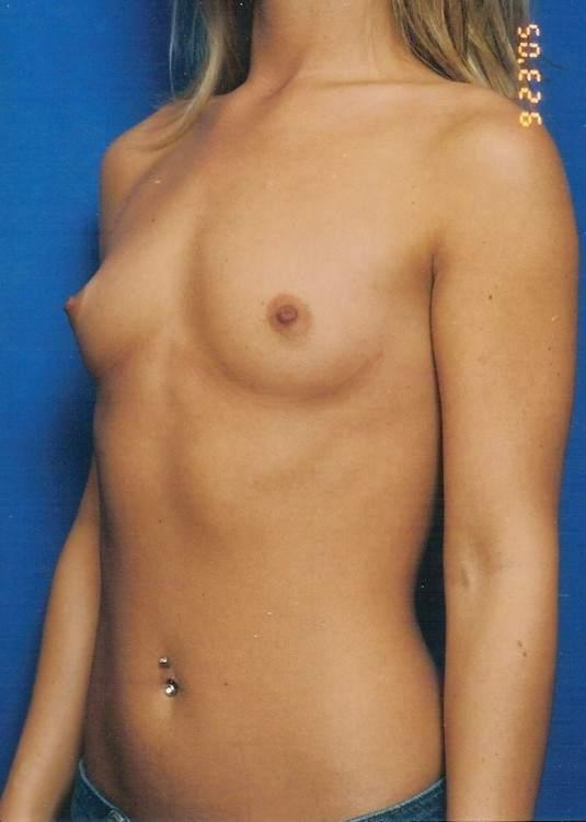 Another before picture for Case 1 Breast Augmentation Before and After Photos